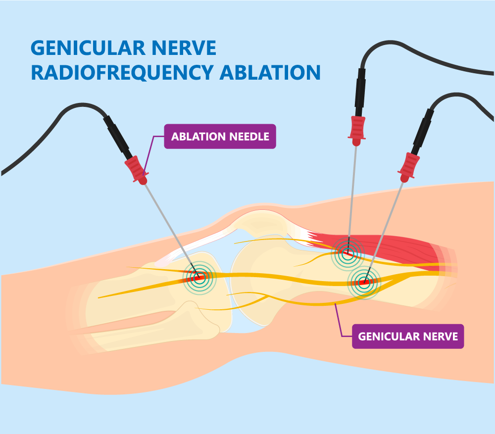 Genicular Nerve Block Illustration | Barr Center